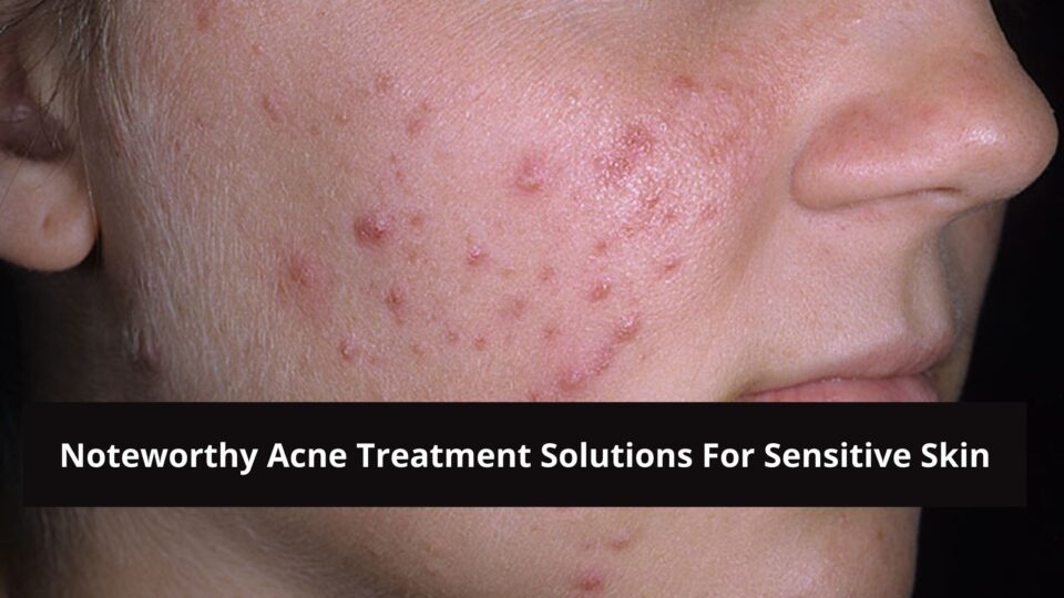 Noteworthy acne treatment for sensitive skin